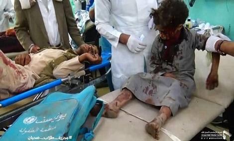 واکنش ها به کشتار ۴۰ کودک یمنی